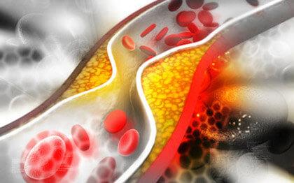 лекарства снижающие уровень холестерина в крови