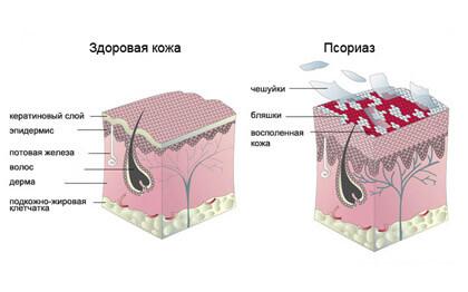 Полынь гвоздика от псориаза - Псориаз